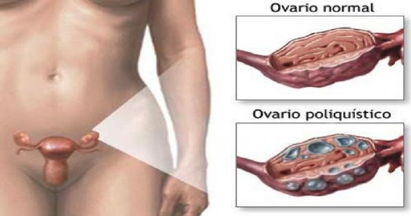 Remedio casero para limpiar el útero, los ovarios y eliminar los quistes.