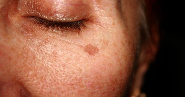 Asombroso: Elimina las manchas oscuras de tu rostro con estas 7 increíbles recetas