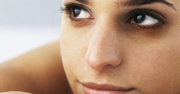 5 formas caseras de eliminar las ojeras. No vas a creer la numero 3!