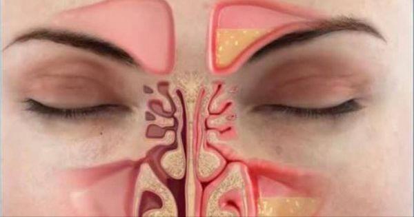 Métodos caseros para eliminar la congestión nasal en menos de un minuto.