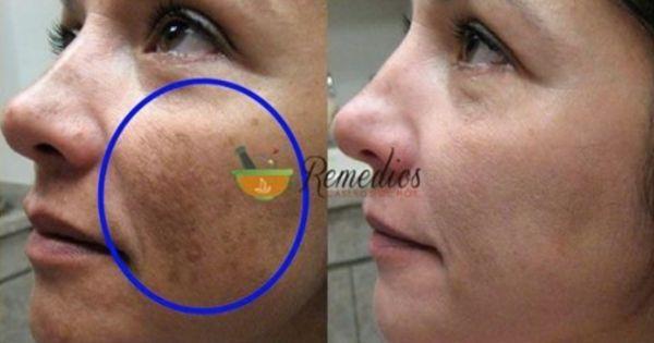 Lava tu cara con esto y le dirás adiós a las arrugas, a los puntos oscuros y al acné!
